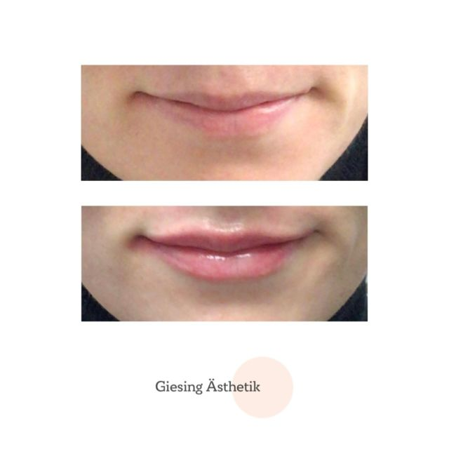 Very subtle enhancement which fits this patient's elegant bone structure beautifully. 👄💕 Happy weekend everybody!